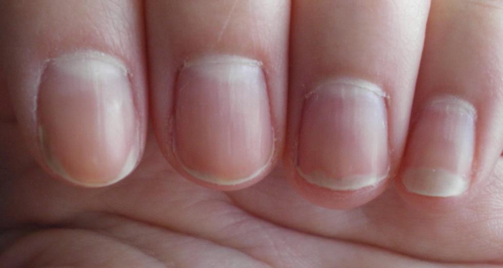 Unghii vinete la degetele mari de la picioare