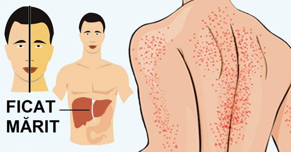 Hepatita - teste cunostinte medicale