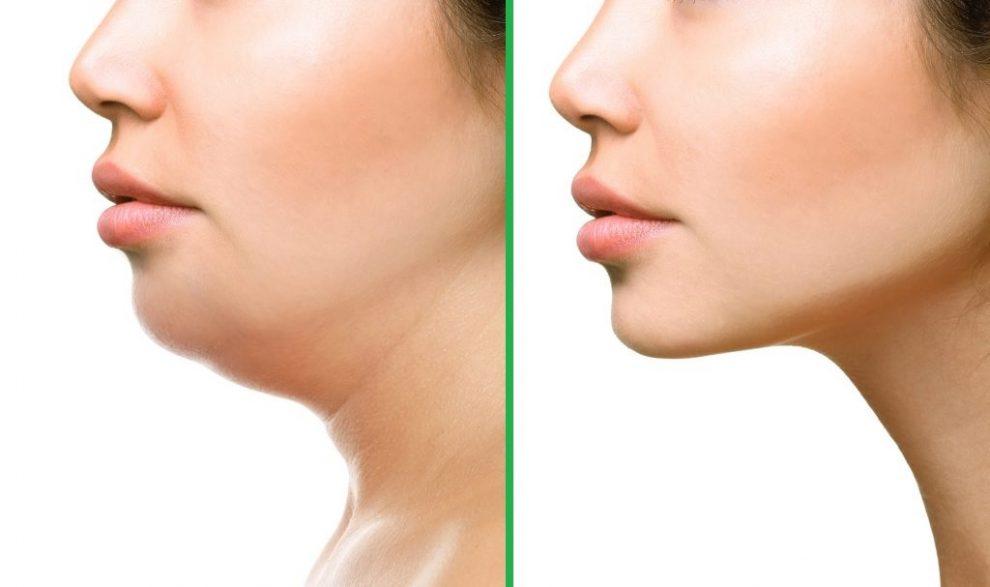 cum să pierzi grăsimea inferioară a buzelor scădere în greutate bam