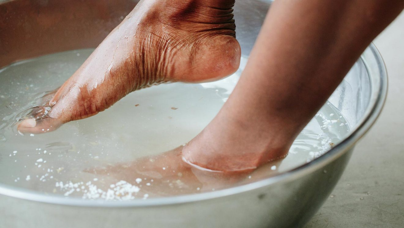 oțet de mere pentru picior varico)
