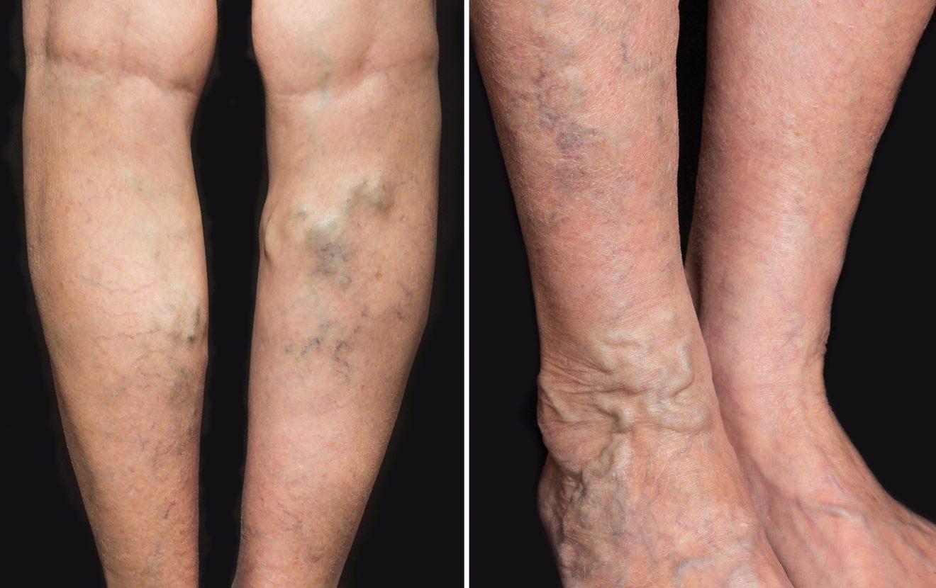 țineți picioarele în timpul sarcinii varicoase