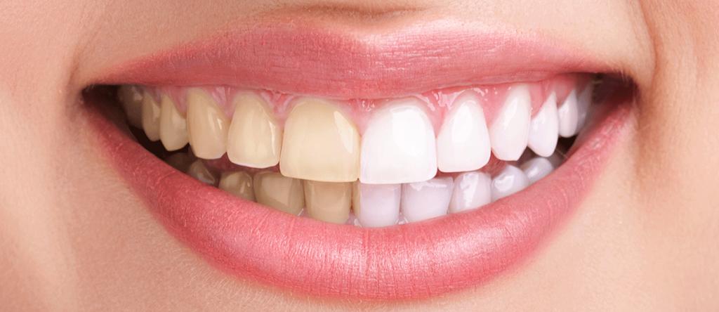 Demineralizare dinti definitivi