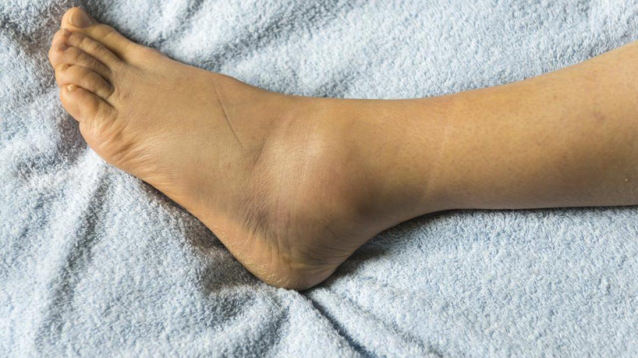 este posibil să se antreneze picioarele cu varicoză